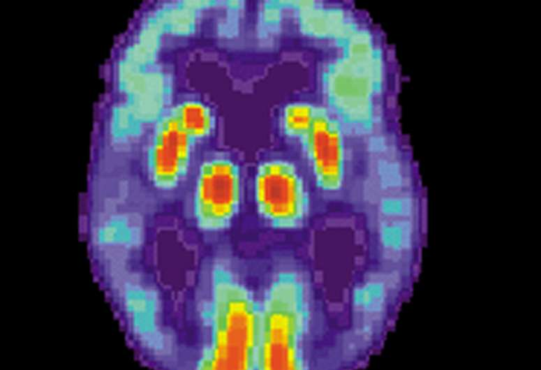 Role of sleep-related brain activity in clearing toxic proteins and preventing Alzheimer's disease